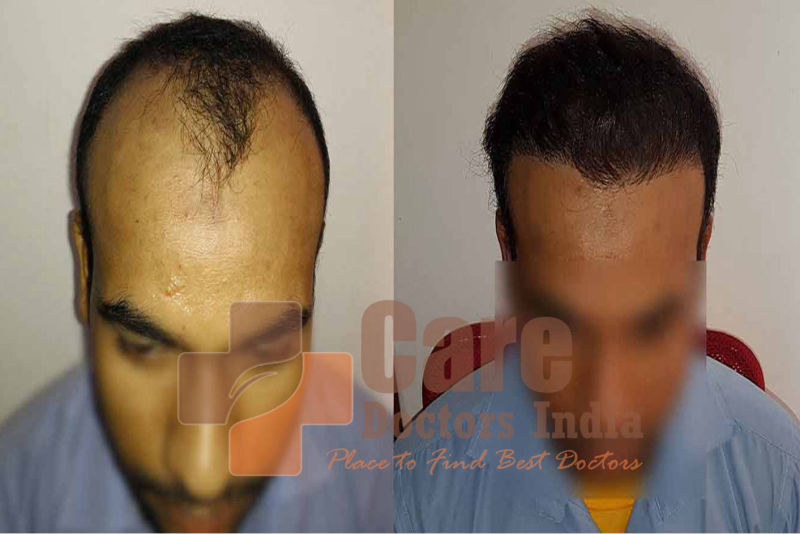 Best Hair Transplant Results